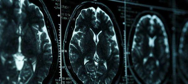 resonancia-magnetica-de-cerebro