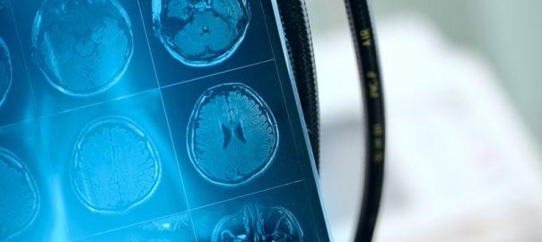 Resonancia Magnetica cerebral