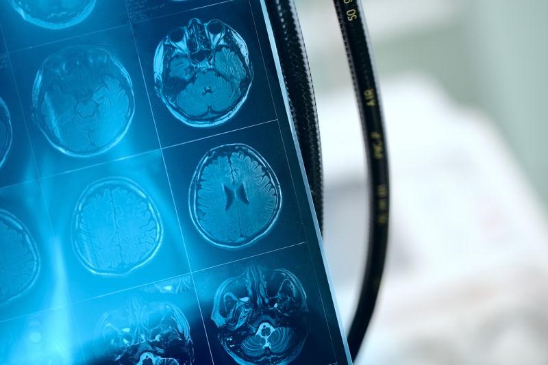 que se detecta en una resonancia magnetica cerebral