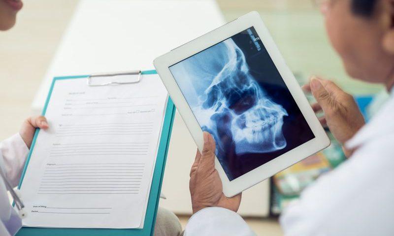 radiografia de craneo