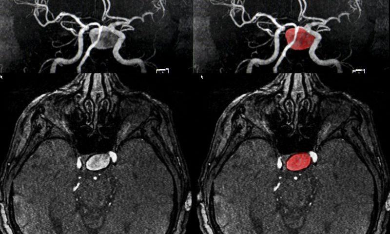 detectar aneurismas cerebrales