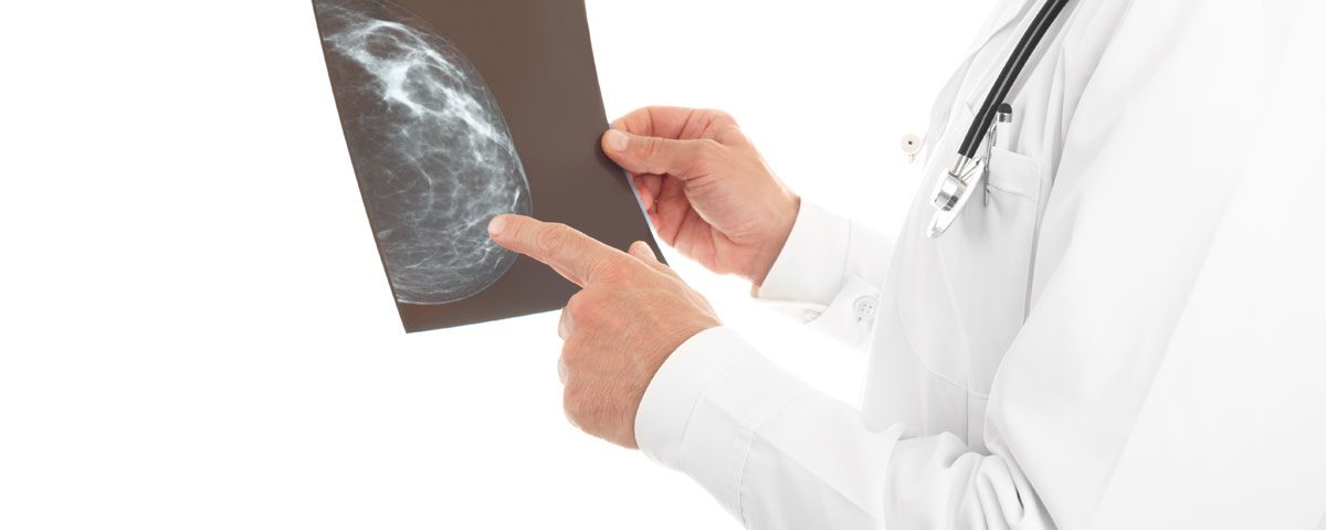 Google crea IA que detecta cáncer de mama