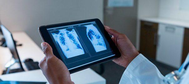 Nuevo servicio gratuito de diagnóstico de teleradiología para combatir el COVID-19