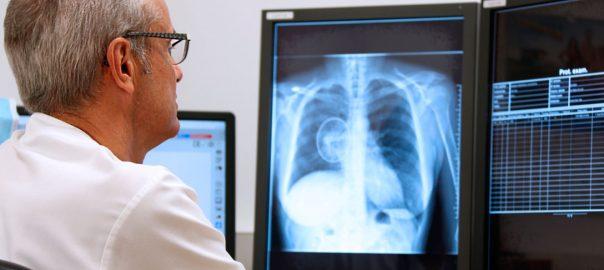 Fotografía: http://www.tauli.cat/La tecnología Deep Learning podría identificar nódulos indicadores de cánceres pulmonares.