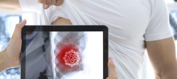Día Internacional de la Radiología 2020