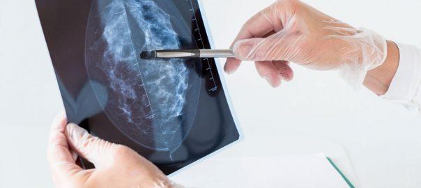 Nuevas medidas Inteligencia Artificial cribado cáncer de mama
